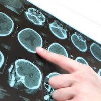 Immunsystem fördert Epilepsie