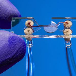 Schnelle individualisierte Therapiewahl durch Zellsortierung mit Licht