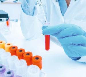 Fünf Tipps für die Auswahl des richtigen Antikörpers