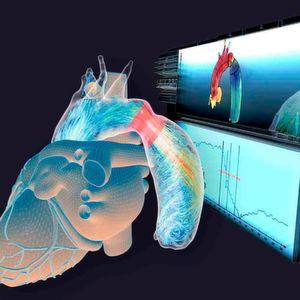 Computersimulation erspart Kindern Herzeingriffe