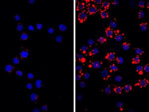 Immunrezeptor begünstigt Arteriosklerose