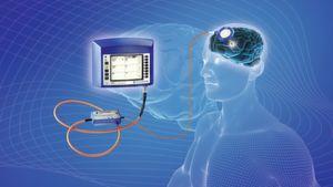 Auch in der Neurochirurgie kommen intelligente Katheter zum Einsatz. Das Telemetriesystem dient der kabellosen Messung des Hirndrucks bei Hydrocephalus-Patienten.