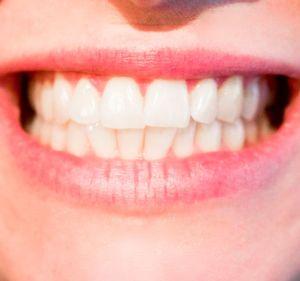 Trotz schlechter Zahnpflege kein Karies?