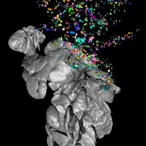 3D Visualisation: New Tool in Diabetes Research