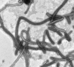 Mikroskopaufnahme von Ebola-Viren
