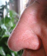 Bakteriengemeinschaften in der Nase erforschen