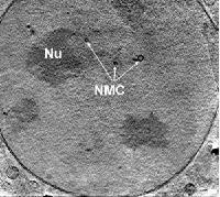 Neues Mikroskop beleuchtet Ultrastruktur von Zellen