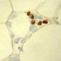 Diabetes-Medikament hemmt gefährliche Entzündung des Fettgewebes