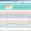 MES lässt den Anlagenbediener Abweichungen schneller erkennen