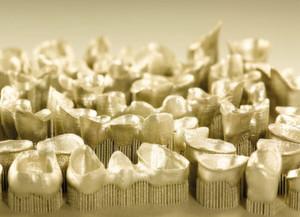 Dentalanwendung aus Rematitan CL von Dentaurum: Hervorstechend ist insbesondere die hohe Materialdichte, die für die hohen mechanischen Beanspruchungen bei Dentalanwendungen Vorteile gegenüber konventionellen Giessteilen bietet.