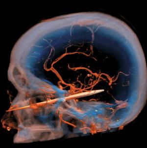 Computertomographie: Medizingeräte sollten nicht nur fehlerfreie Ergebnisse liefern, sondern auch die Strahlungsdosis möglichst gering halten. Zuverlässigkeit ist hier oberstes Gebot.