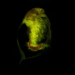 Mikroplastik in marinen Proben wirksam untersuchen