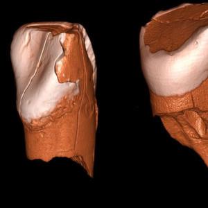 Neues zum Untergang der Neandertaler