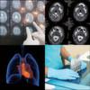 Unterschiedliche Antriebselemente für medizintechnische Geräte