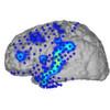 Spracherkennung aus Gehirnströmen