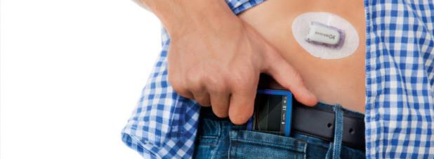Glucose-Monitor: So sehen die Dexcom-Geräte derzeit aus. Google will die Messwerte des Sensors kontinuierlich an die Cloud übermitteln uind dort speichern.