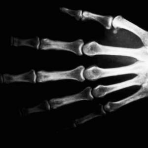 Biopolymere sollen Behandlung von Knochenverletzungen vereinfachen