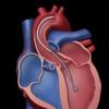 Pumpsystem für minimalinvasive Herz-Kreislauf-Unterstützung