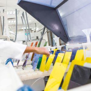 BASF will sich auf das Geschäft mit Autolacken kümmern und deshalb einen Teil des Lacke-Geschäfts an Akzo Nobel verkaufen.