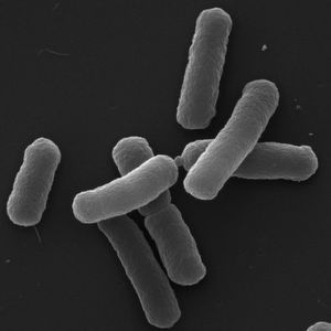 Stressed Bacteria Tend to Mutate More Rapidly