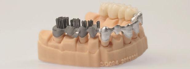 Additiv gefertigte Zahn-Brücke. In der Zahnmedizin haben sich 3D-gedruckte Prothesen zunehmend etabliert. Auf dem 3D-Druck-Kongress in Mainz wollen führende Forscher und Mediziner weitere Anwendungsfelder in der Gesundheitstechnik erschließen.