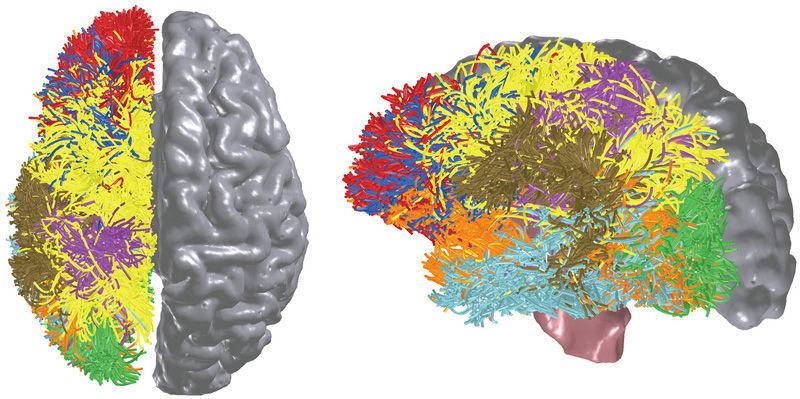"""Vorbild für den """"denkenden Chip"""" ist das menschliche Gehirn, Bild: IBM"""